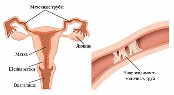 Непроходимость фаллопиевых труб в результате спаечного процесса – основная причина женского бесплодия.